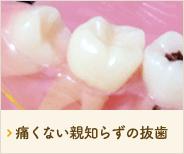 痛くない親知らずの抜歯