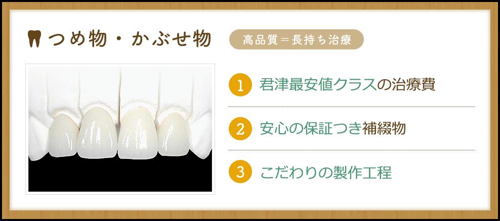 根管治療(歯内療法)